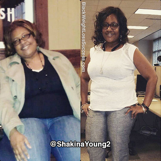 shakina before and after