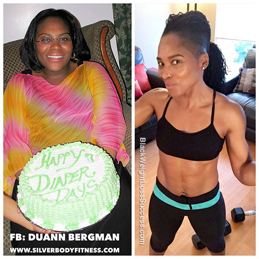 duann before and after