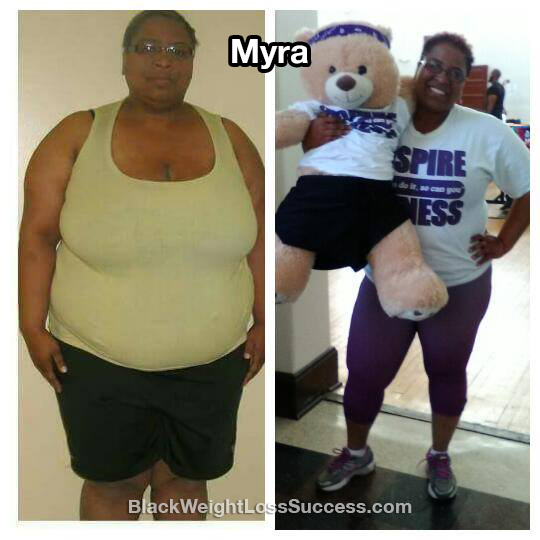 myra before and after
