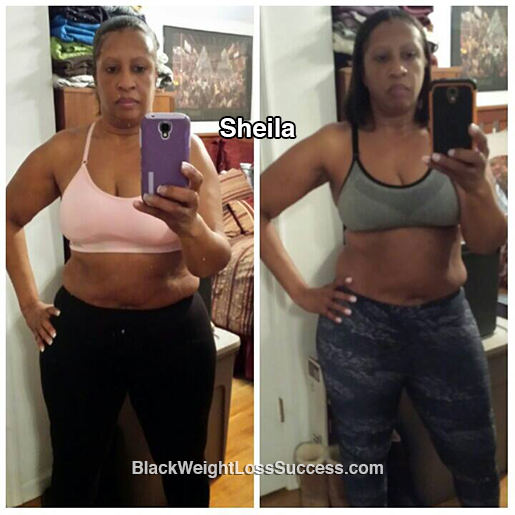 sheila before and after