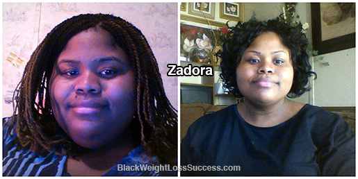 zadora before and after
