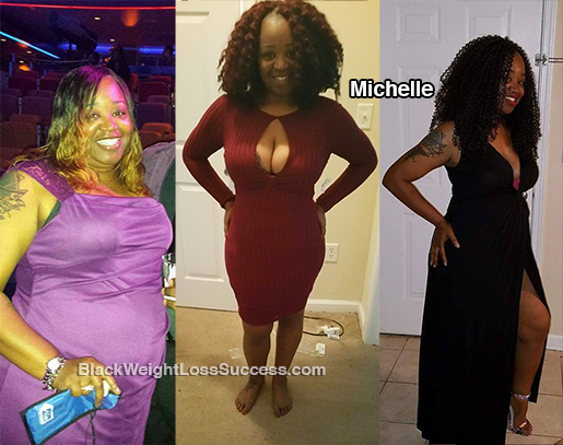 michelle before and after
