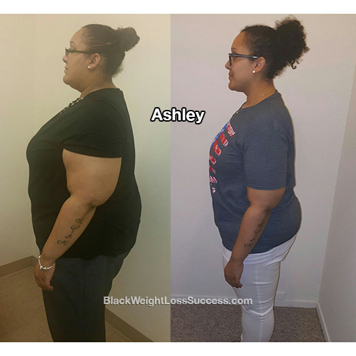 ashley weight loss surgery