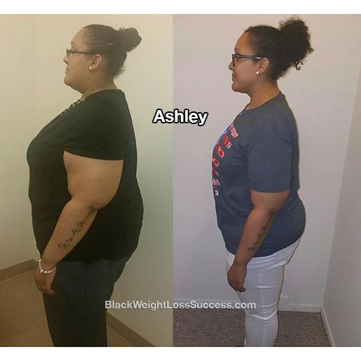 ashley weight loss surgery