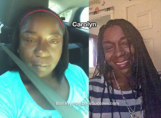 carolyn before and after