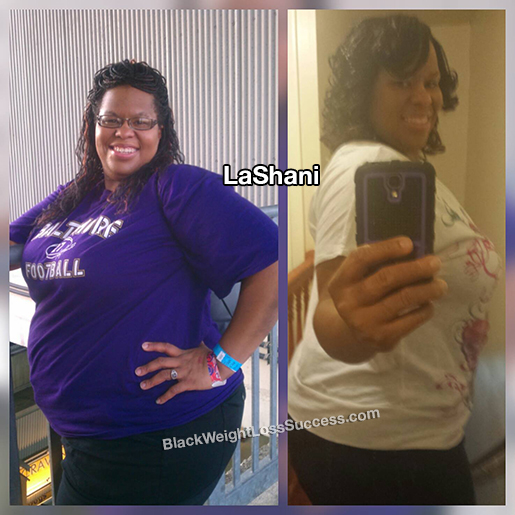 lashani before and after