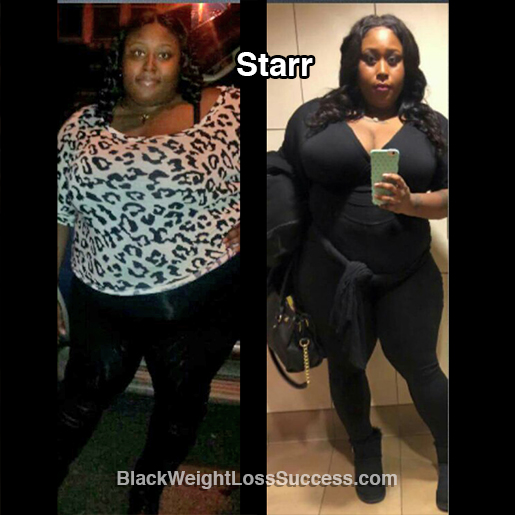 starr before and after
