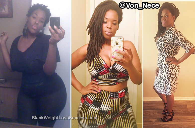 Vonna before and after