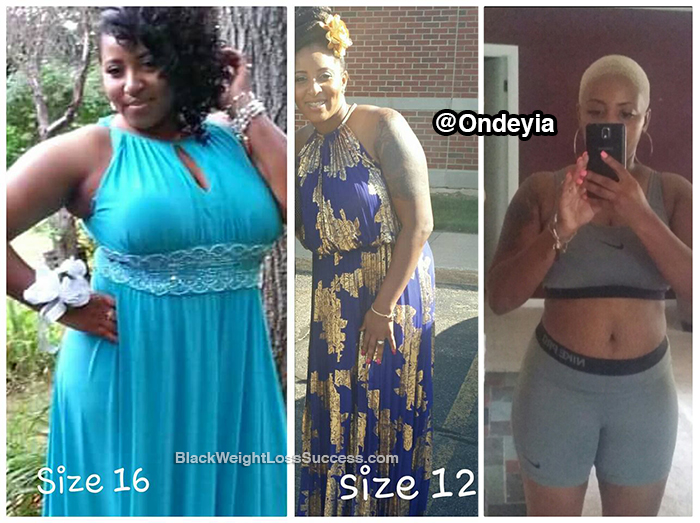 ondeyia before and after