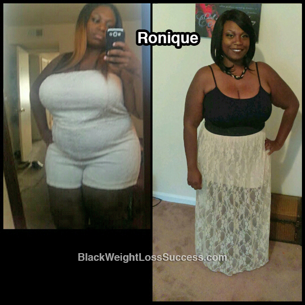 ronique before and after