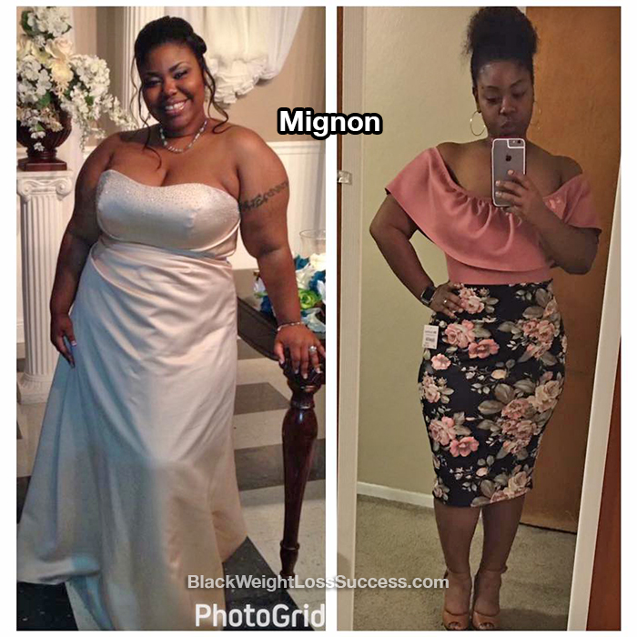 Mignon weight loss
