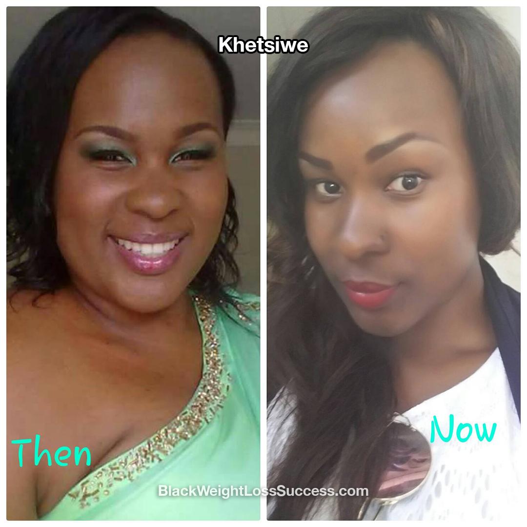 Khetsiwe weight loss story