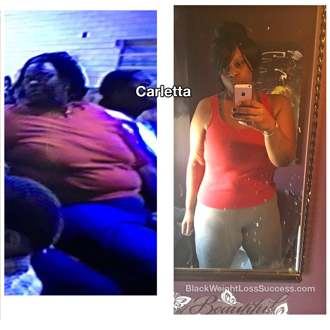 Carletta weight loss story