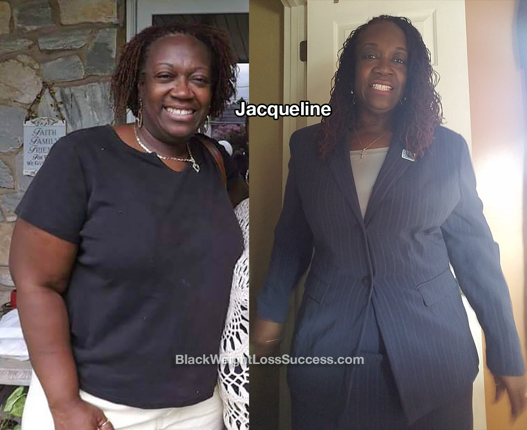 Jacqueline before and after