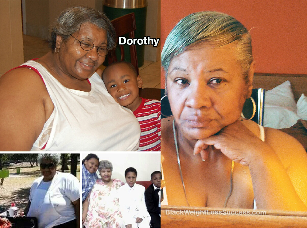 dorothy before and after