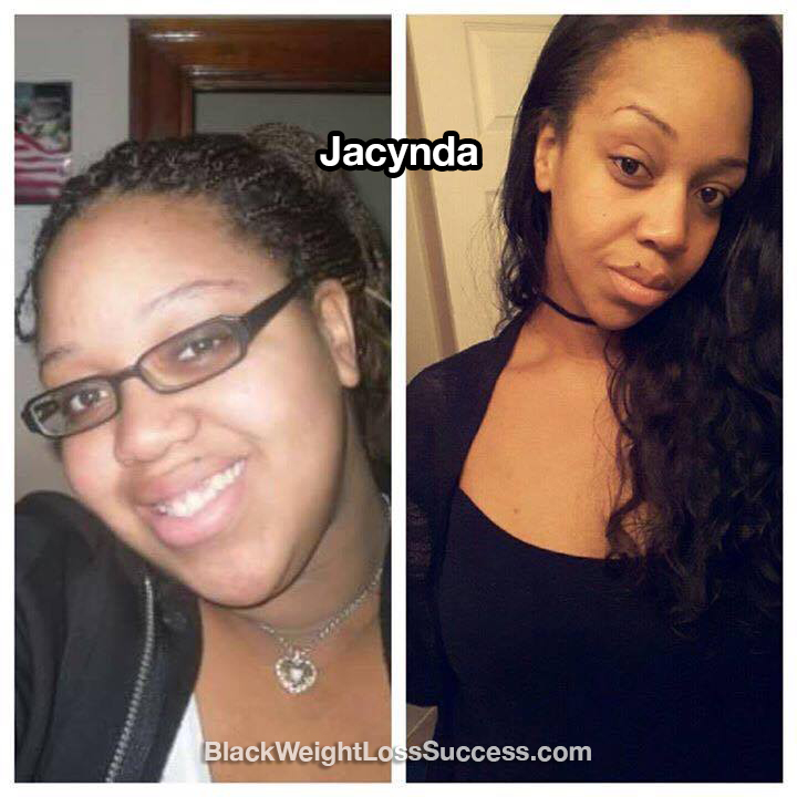 Jacynda before and after