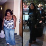 Monica shares her life changing weight loss surgery journey