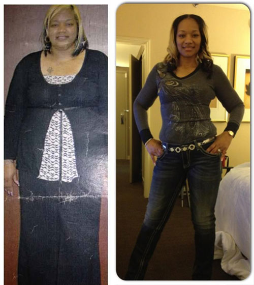 Kenya Lost 130 Pounds With Weight Loss Surgery Black Weight Loss