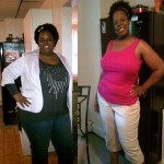 gastric bypass weight surgery