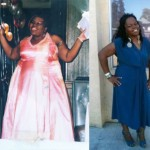 Theresa lost 178 pounds with weight loss surgery