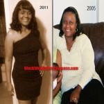 weight loss surgery Monica