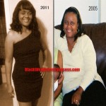 Monica lost 89 pounds with weight loss surgery