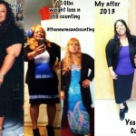 Beverly weight loss before and after