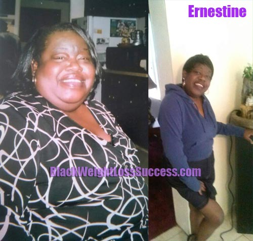 Ernestine lost 100 pounds with weight loss surgery | Black ...