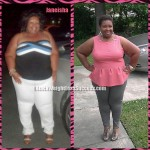 Janeisha weight loss surgery