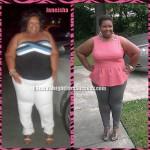 Janeisha weight loss surgery