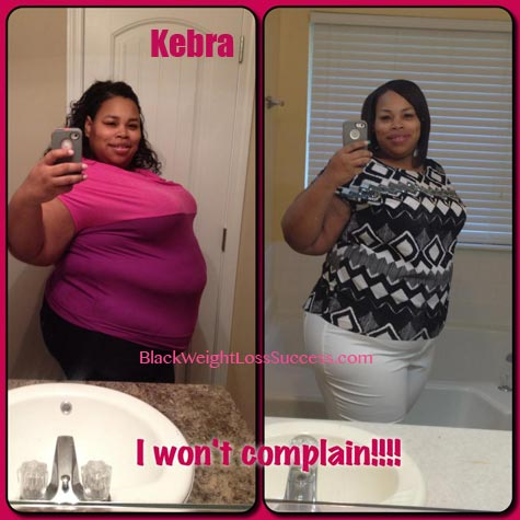 Kebra Lost 145 Pounds With Weight Loss Surgery Black Weight Loss