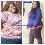 Lashonda weight loss surgery