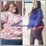 Lashonda weight loss surgery