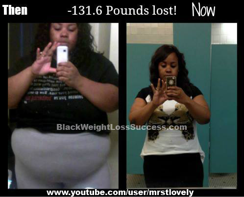 MrsTLovely lost 131 pounds with the Realize Band | Black ...