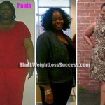 Paula weight loss surgery