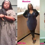 Maxine lost 205 pounds with weight loss surgery