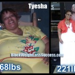 Tyesha weight loss surgery