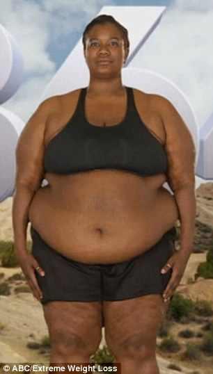 Extreme Makeover Weight Loss Edition: Cassandra Dumas's