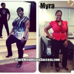 Myra lost 60 pounds with weight loss surgery, eating right and exercise