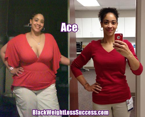 Ace Lost 107 Pounds With Weight Loss Surgery Black