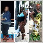 Anita lost 55 pounds with weight loss surgery