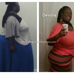 Big Congrats: Devona lost 473 pounds!