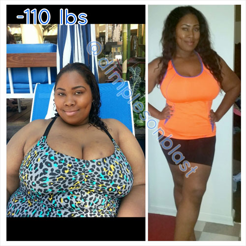 Naajma lost 110 pounds with surgery and hard work | Black ...