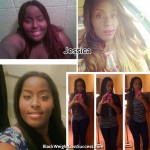 Jessica lost 250 pounds with weight loss surgery