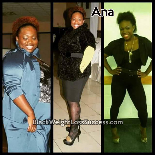 Ana lost 100 pounds with gastric bypass surgery | Black ...