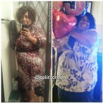 Tracey lost 110 pounds with surgery