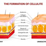 What Is Cellulite, Really?