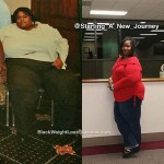 marcia weight loss surgery