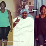 syree before and after