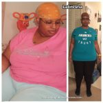 Labresha before and after